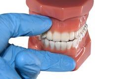 Orthodontischer Ausrichtungstransport der Zahnarztshow für perfektes Lächeln Stockfotos