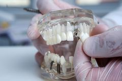The orthodontist holds a model of teeth with implants in his hand and shows how to insert the tooth. Close up. Macro. The orthodontist holds a model of teeth royalty free stock image