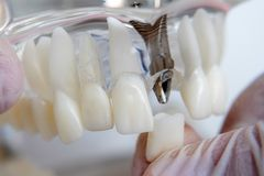 The orthodontist holds a model of teeth with implants in his hand and shows how to insert the tooth. Close up. Macro. The orthodontist holds a model of teeth stock images
