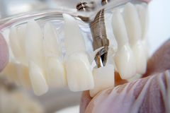 The orthodontist holds a model of teeth with implants in his hand and shows how to insert the tooth. Close up. Macro. The orthodontist holds a model of teeth stock photo