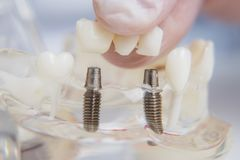 Orthodontist shows how to insert the implant. Macro. The doctor orthodontist shows how to insert the implant. Macro stock images