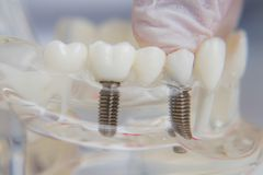 Orthodontist shows how to insert the implant. Macro. The doctor orthodontist shows how to insert the implant. Macro stock photos