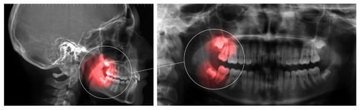 Orthopanoramic и Cephalometry Стоковые Изображения RF