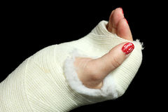 Orthopedic cast Stock Image