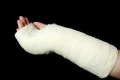 Orthopedic cast Stock Images