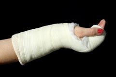 Orthopedic cast Stock Photography