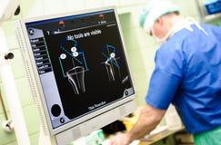 Orthopedic equipment navigation system. Medical orthopedic equipment navigation system and surgeon on background at hospital Stock Image