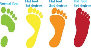 Orthopedic steps of flat foot. Many colors stock illustration