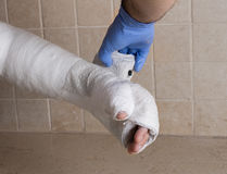 Orthopedic technician putting on a fiberglass  plaster cast Royalty Free Stock Images