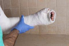 Orthopedic technician putting on a fiberglass  plaster cast Royalty Free Stock Photo