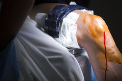 Orthopedics surgery knee arthroscopy anaesthetic Stock Photography