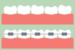 Ortodoncia de los dientes Fotografía de archivo libre de regalías
