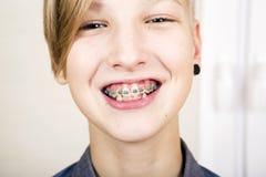 Ortodoncia y corrección de la mordedura Fotografía de archivo