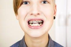 Ortodoncia y corrección de la mordedura Imágenes de archivo libres de regalías
