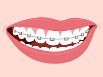 Ortodontia corretiva das cintas Fotos de Stock