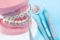 ortodontyczni modela i dentysty narzędzia Obraz Royalty Free