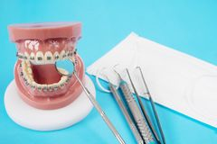 ortodontyczni modela i dentysty narzędzia Zdjęcie Royalty Free