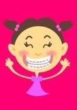 ortodontyczny Fotografia Stock