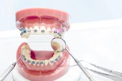 Ortodontyczny model Fotografia Stock
