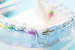 Ortodontyczny model Zdjęcie Stock
