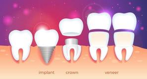 Ortodontyczny przywrócenie Wszczep, korona, fornir ilustracja wektor