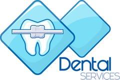 Ortodonzia dentaria Fotografie Stock