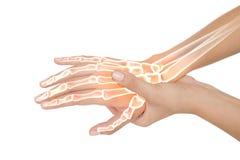 Os accentués de femme avec douleur de main image libre de droits
