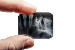 Os dedos estão guardando o raio X dos dentes isolados no fundo Imagem de Stock Royalty Free