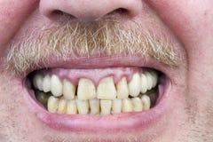 Os dentes amarelos são tiro doente do estúdio Fotos de Stock