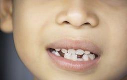 Os dentes de bebê são deixados cair apenas na boca e no dente regenerado fotografia de stock