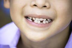 Os dentes de bebê são deixados cair apenas na boca e no dente regenerado fotos de stock royalty free