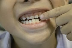 Os dentes de beb? s?o deixados cair apenas na boca imagem de stock