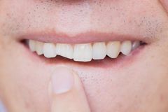 Os dentes quebrados masculinos danificaram dente anterior rachado imagem de stock royalty free
