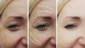 Os enrugamentos da mulher antes e depois de levantar procedimentos maturetherapy do tratamento levantam tratamentos do efeito da  imagem de stock royalty free