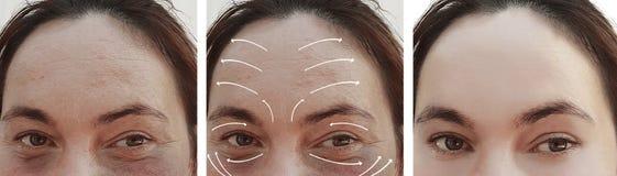 Os enrugamentos da mulher enfrentam antes e depois da correção da terapia da cosmetologia da diferença do esteticista, seta fotografia de stock royalty free