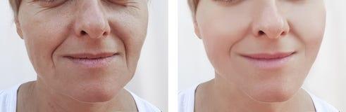 Os enrugamentos da mulher enfrentam o paciente da diferença da remoção antes e depois da dermatologia dos tratamentos fotografia de stock royalty free