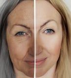 Os enrugamentos da mulher enfrentam o processo da diferença antes e depois do conceito de envelhecimento imagens de stock royalty free