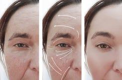 Os enrugamentos da mulher enfrentam o rosacea antes e depois da correção da terapia da cosmetologia da diferença, seta fotos de stock