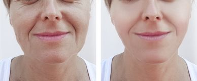 Os enrugamentos da mulher enfrentam a remoção antes e depois da cosmetologia dos tratamentos imagem de stock royalty free