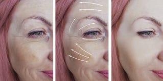 Os enrugamentos da mulher enfrentam a seta do esteticista antes e depois do tratamento paciente da correção da diferença fotos de stock royalty free