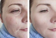 Os enrugamentos da mulher enfrentam a terapia da diferença antes e depois dos tratamentos fotografia de stock