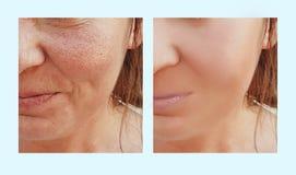Os enrugamentos do olho da mulher antes e depois da dermatologia retocam procedimentos de hidratação do cosmético foto de stock royalty free