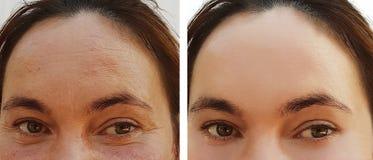 Os enrugamentos do olho da mulher antes e depois do efeito da dermatologia retocam procedimentos de hidratação do cosmético imagem de stock royalty free