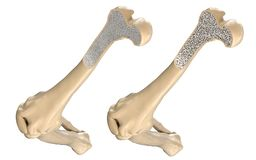 Os humain de cuisse - normale et avec l'ostéoporose Photographie stock