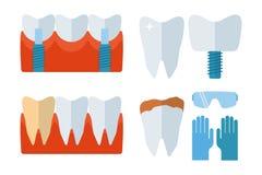 Os implantes do dente do dentista e o equipamento do stomatology vector a ilustração Fotografia de Stock Royalty Free