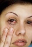 Os olhos da mulher doente Fotos de Stock