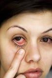 Os olhos da mulher doente Imagem de Stock