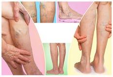 Os pés fêmeas com a aranha varicosa das veias collage fotografia de stock royalty free