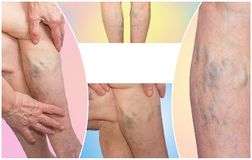 Os pés fêmeas com a aranha varicosa das veias collage imagem de stock royalty free