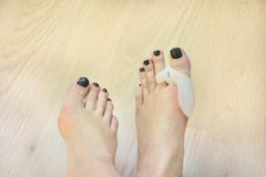 Os pés que vestem a almofada ortopédica do valgus do hallux no polegar toe foto de stock